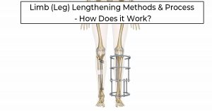 """An outline of a patients tibia bones with a circular external fixator on one limb and an intramedullary nail like precice in the medullary cavity on the other leg with the words """"Limb (Leg) Lengthening Methods & Process - How Does it Work"""" at the top of the image."""