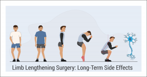 Five men with different limb lengthening effects or complications such as bow legs (o legs), knock knees (x knees), anterior pelvic tilt (apt), drop foot (ballerina's foot), and the last person is squatting to show the change in biomechanics. In addition, there is a nerve ending symbolizing possible nerve damage.
