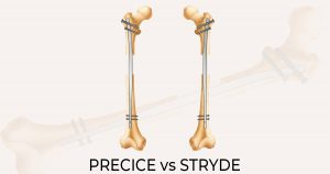 Two femur bones with a precice and stryde intramedullary nail inserted into the medullary cavity